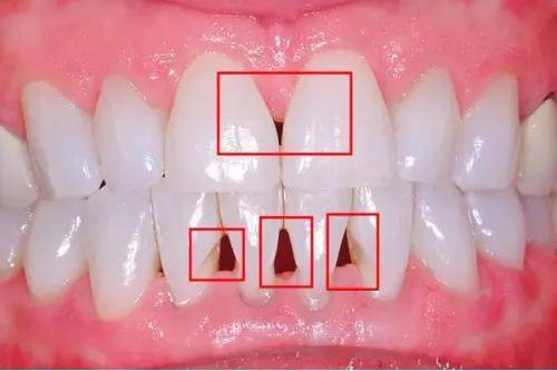 """牙齿的""""黑三角""""如何预防及改善"""