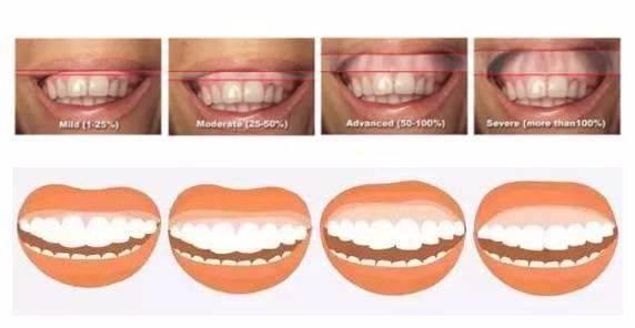 牙齿矫正——改善露龈笑
